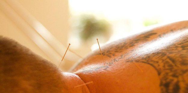 Mango Acupuncture